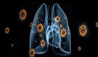 面对来势汹汹的新型肺炎,我们该怎么预防?